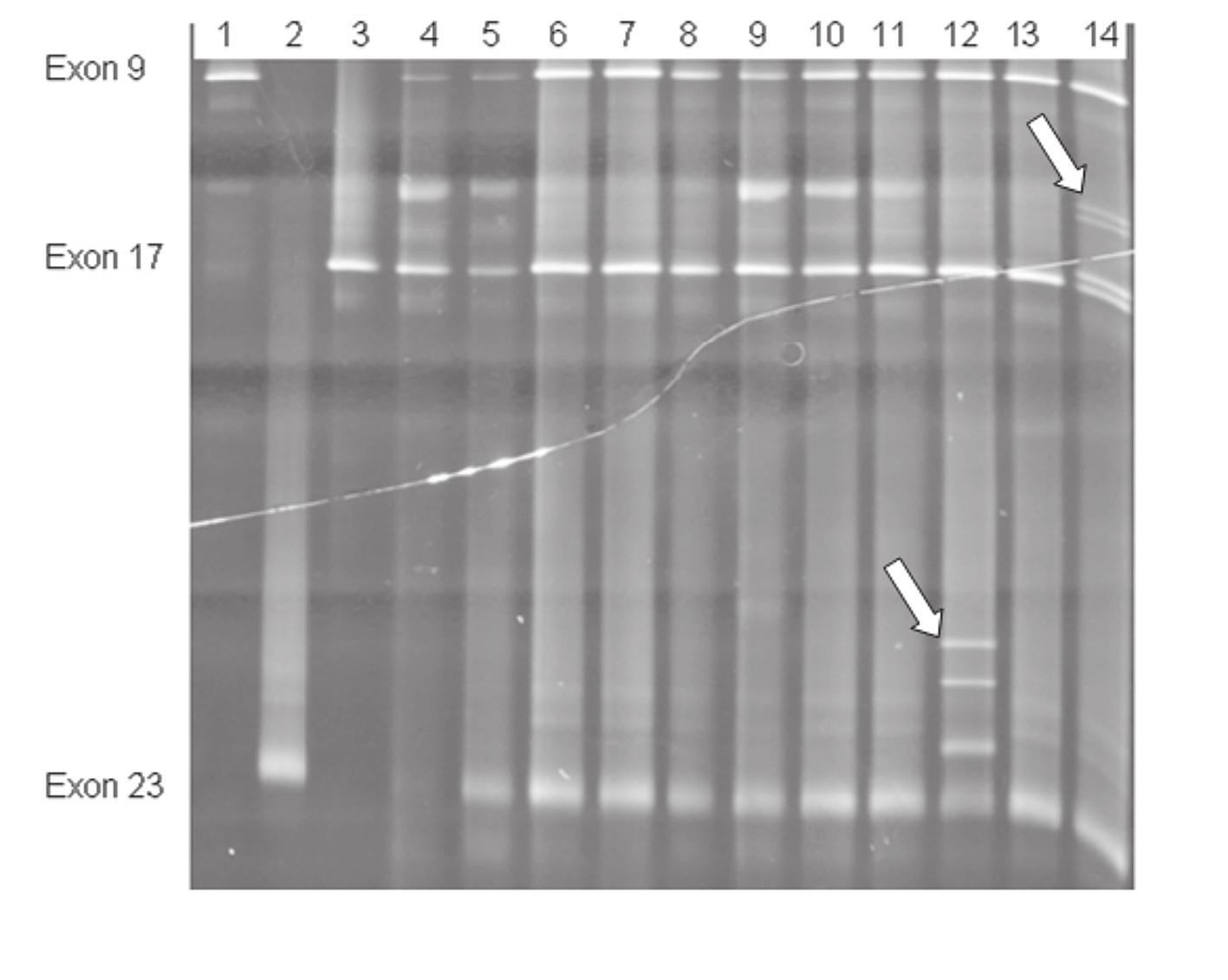 Simultánní vyšetření exonů č. 9, 17 a 23 TSC1 genu metodou DGGE. Vzorky 1– 3 fyziologické kontroly v jednotlivých exonech, 4– 14 vzorky TSC pacientů; šipky označují záchyt mutace v exonu 23 u pacienta č. 12 a v exonu 17 u pacienta č. 14.