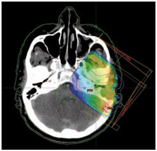 Izodózní plán, rozložení dávky v nádoru v oblasti pyramidy.