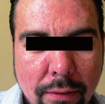 Výsledek léčby metronidazolem