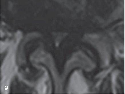 Morfologická klasifikace stenózy páteřního kanálu na transverzálních T2 MR obrazech dle Schizase et al [30].