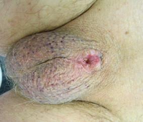Výsledný pooperační stav – pahýl penisu, bez lokální recidivy lymfomu Fig. 4. Outcome after the radical surgery, no residual tumour or local relapse