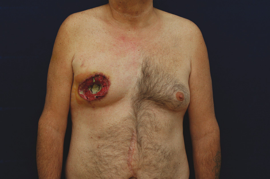 Mužský karcinomu prsu – exulcerovaná forma