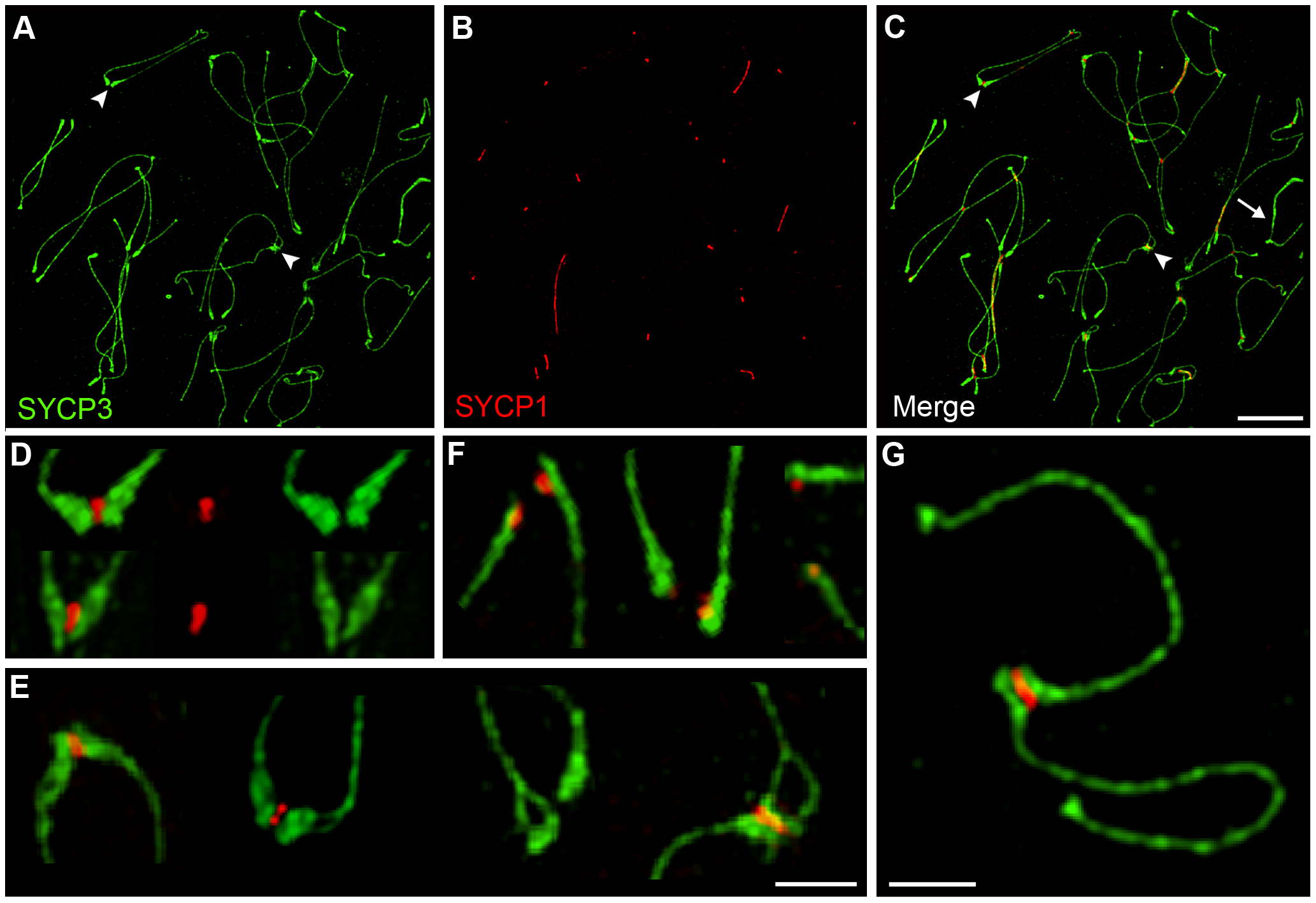 Centromere-associated SC fragments during diplonema.