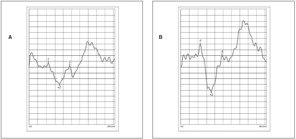 Porovnanie tvaru NPN komplexu u jednej pacientky pred započatím oklúznej liečby (a) a v priebehu oklúznej liečby (b) s úpravou zrakovej ostrosti o 2 riadky Snellenových optotypov. Nastalo zlepšenie v predĺžení amplitúd aj skrátení latencií
