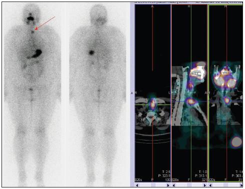 Stejný pacient jako na obr. č. 9, příklad neúspěšné TERJ.  Vysvětlivky - postterapeutická celotělová scintigrafie a SPECT/CT krku - reziduum štítné žlázy vlevo, pokles Tg na 0,1 μg/l, zvýšená hladina protilátek anti-Tg, v plánu další terapie RJ.