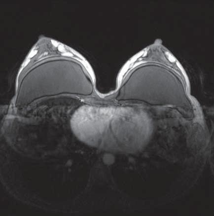 MR-snímek prsu – fyziologické sycení žlázy, oboustranně neporušené silikonové implantáty pod žlázou