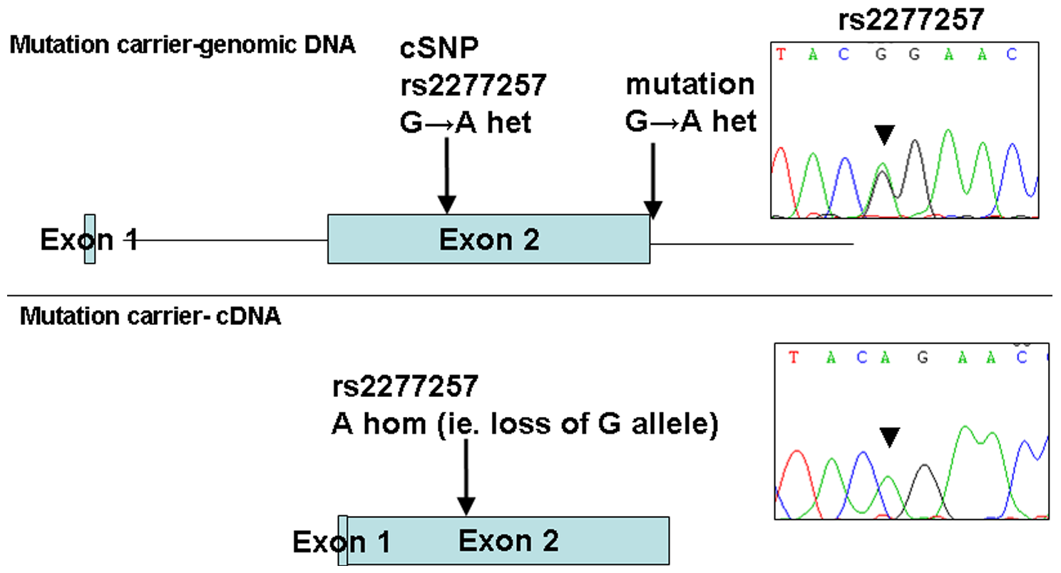 Loss of expression of mutant allele due to IVS2+1 G>A splice-site mutation identified in family 1.