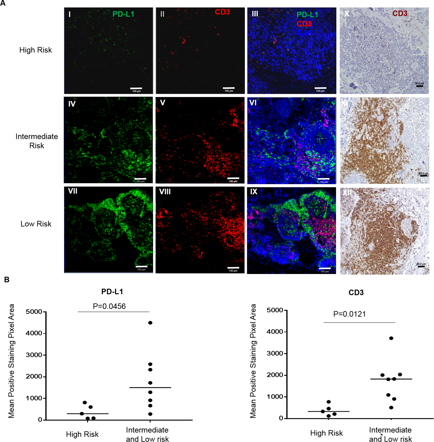 T-cell infiltrates and programmed cell death-ligand 1 (PD-L1) tumor expression are associated with risk stratification in human neuroblastoma.