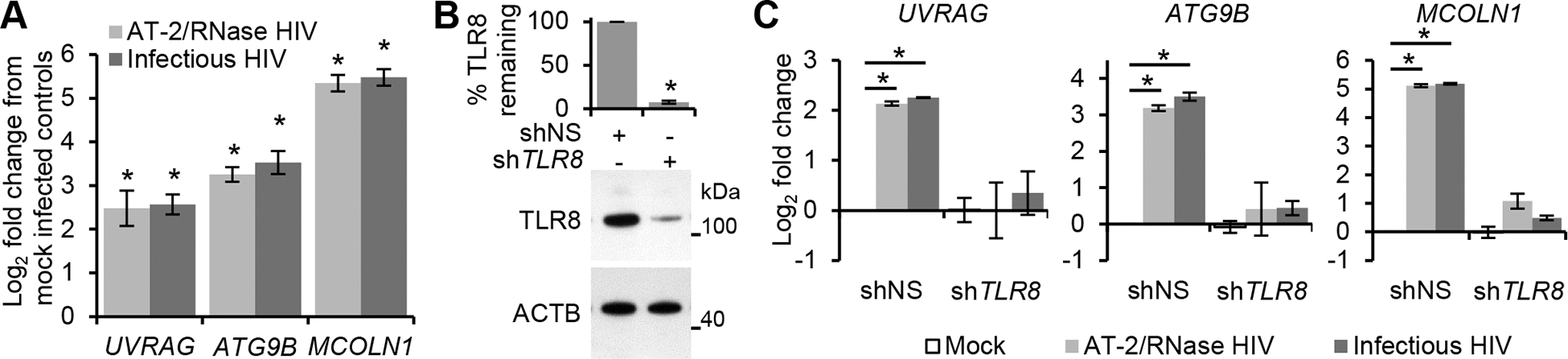 HIV-mediated autophagy and lysosomal gene expression is dependent upon TFEB.