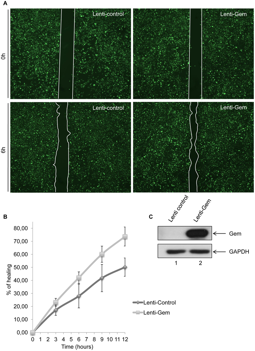 Gem expression is sufficient to increase cell motility.