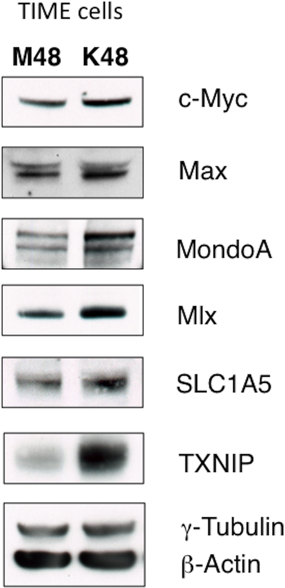 KSHV infection of endothelial cells increases protein expression of the Myc/MondoA network and downstream targets, including the glutamine transporter SLC1A5.