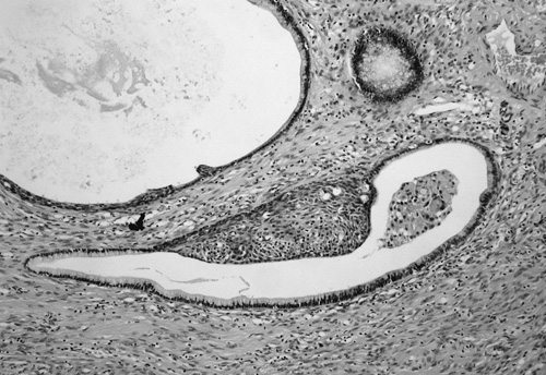 Fig. 3. Large mucinous glands with focal squamous metaplasia (H&E, 200)