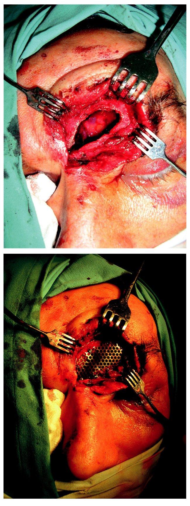 a) Pacient zo sledovaného súboru so stratovým poranením vo frontálnej oblasti. Chirurgický prístup v oblasti tržnej rany. b) Pacient zo sledovaného súboru po rekonštrukcii stratového poranenia vo frontálnej oblasti titánovou mriežkou. Chirurgický prístup v oblasti tržnej rany.