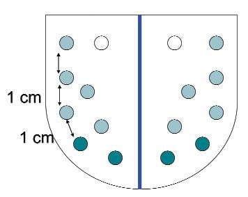 Rozšířená (multiplicitní) 8–16 vz biopsie s laterálními vzorky.
