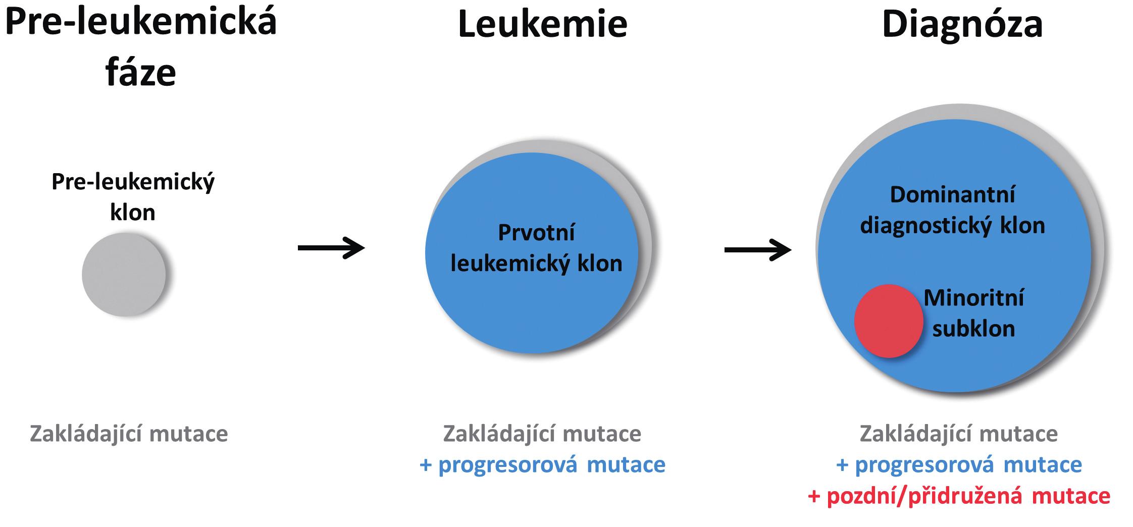 Zjednodušené schéma vícekrokového postupného vývoje AML Z hematopoetického klonu nesoucího zakládající mutaci vzniká po získání druhé, progresorové mutace klon s plně leukemogenní kapacitou. Po výskytu další mutace u jedné z leukemických buněk vzniká subklon, který v době diagnózy představuje pouze minoritní část leukemických buněk. Velikost kruhů vyjadřuje poměrné zastoupení jednotlivých mutací.