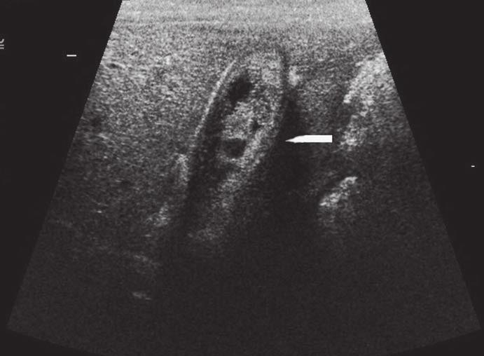 Tubulopapilární adenom. Ultrazvukové vyšetření – žlučník vyplněný echogenními hmotami. Fig. 1. Tubulopapillary adenoma. Ultrasound examination – gallbladder filled with echogenic masses.