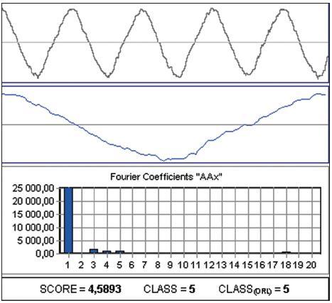 Příklad záznamu hrtanového tónu při nedomykavosti závěru glottis pro případ parézy zvratného nervu.