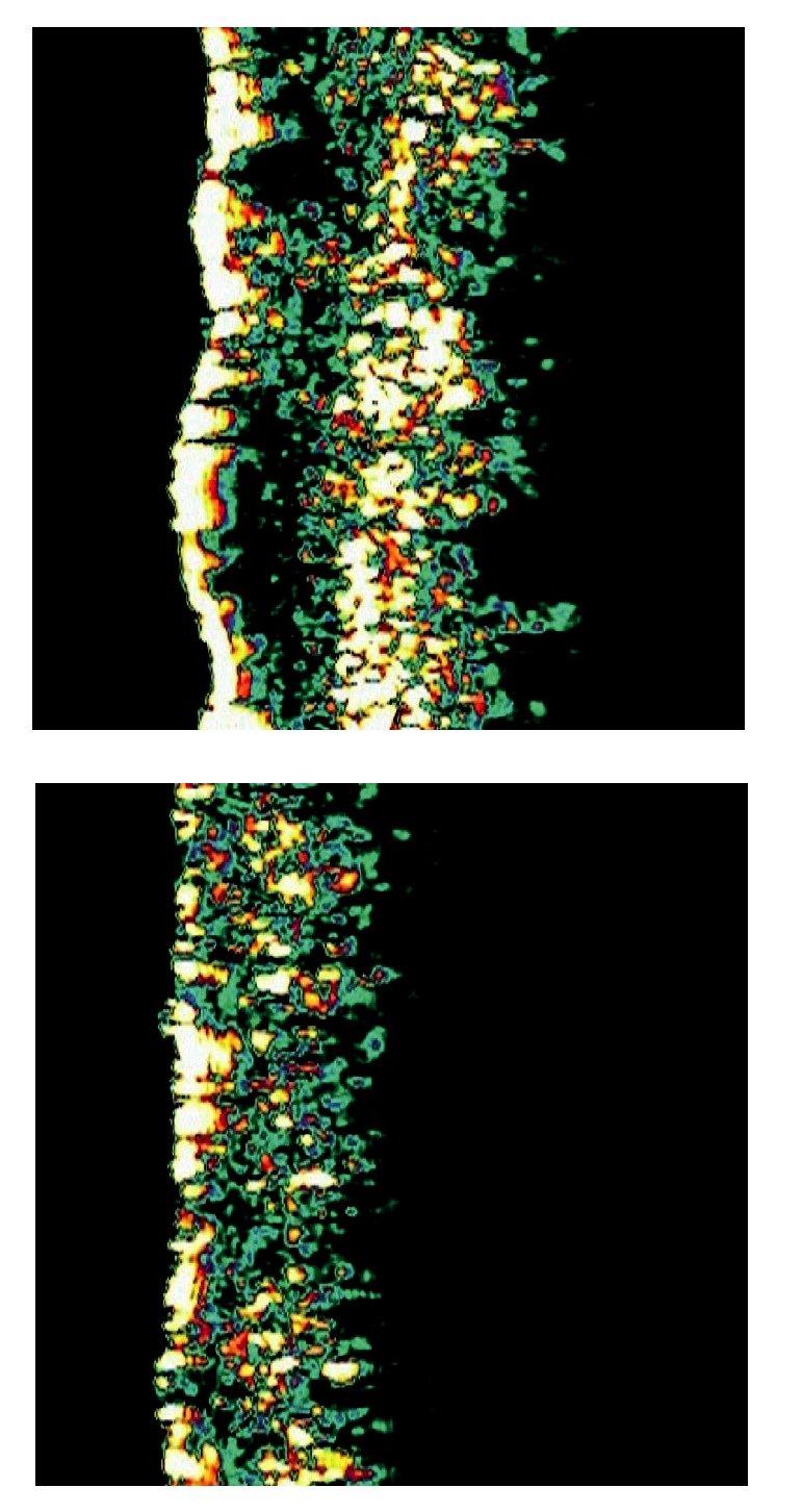 a) Sklerodermiformní bazaliom (obličej – spánek) b) Kontralaterální zdravá kůže (obličej – spánek)
