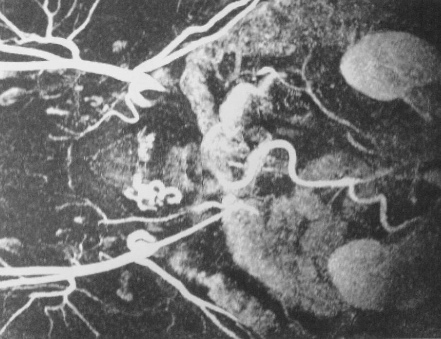 Uzávěr subrenální aorty Fig. 1. Occlusion of the subrenal aorta
