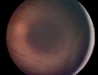 ROP 2. štádium ROP – val medzi vaskularizovanou a avaskulárnou časťou sietnice.