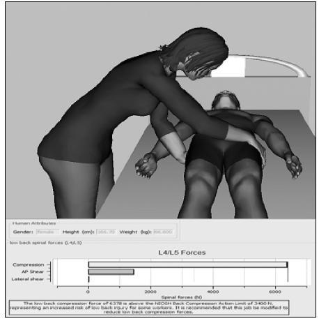 Pracovnice polohuje pacienta v oblasti pánve o vynakládané síle 511,2 N při manipulaci s pacientem o hmotnosti 65,6 kg
