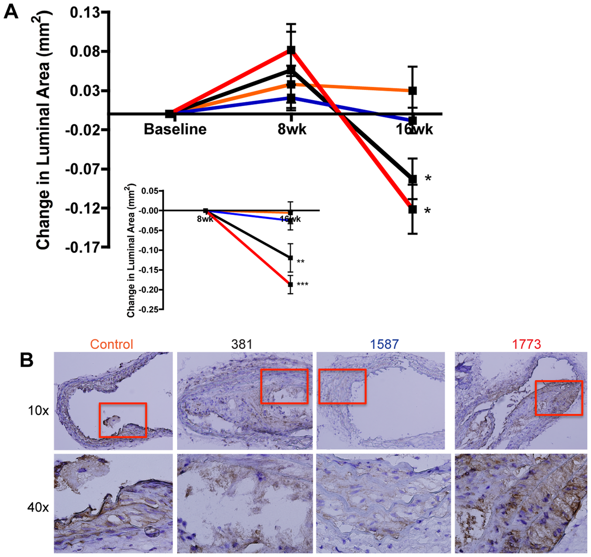Expression of immunologically silent or antagonistic lipid A structures exacerbates atherosclerotic plaque progression in the innominate artery.