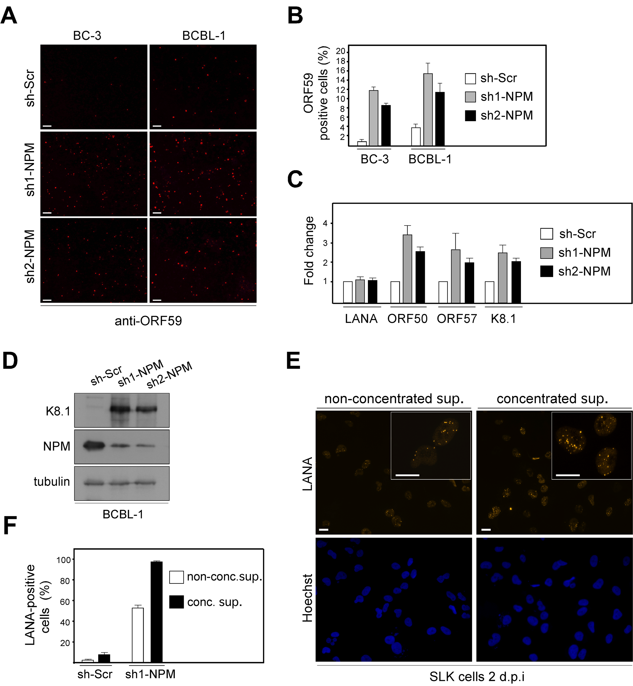 NPM depletion triggers induction of the full lytic replication cascade in PEL cells.