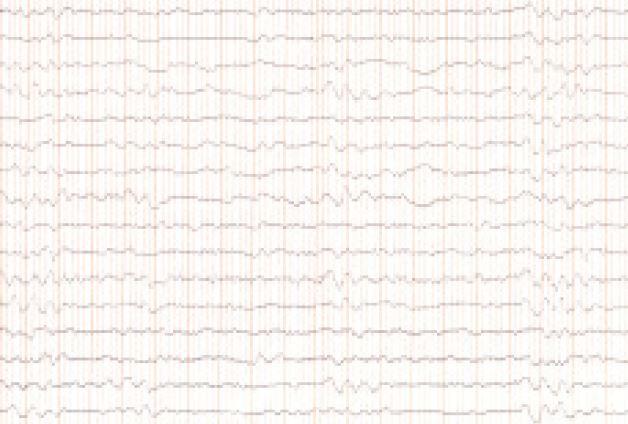 EEG v októbri roku 2005 – opakovane epizódy rytmickej δ-aktivity, amplitúdy 150–200 μV, s frekvenciou 1–2 Hz.