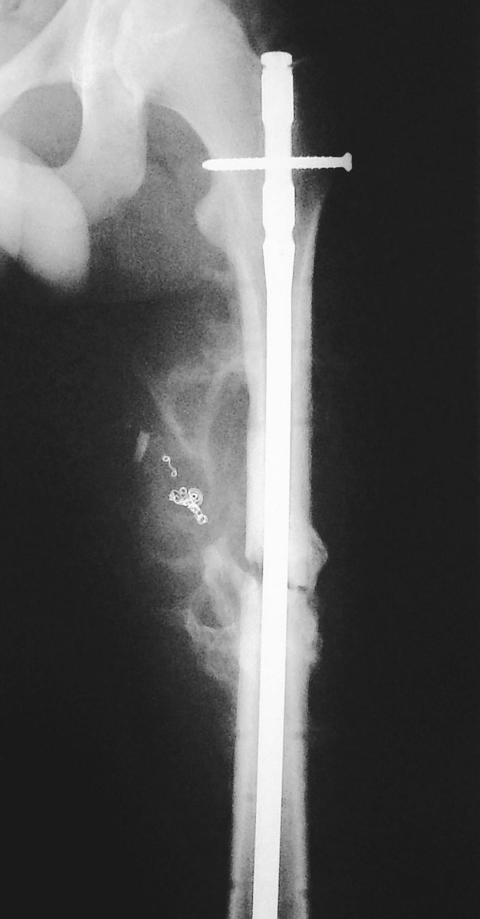 RTG obraz stavu po konverzi zevní fixace na nitrodřeňový hřeb, st.p. angiografickém řešení pseudoaneuryzmatu spirálami Vortex Pic. 6. X-ray view of the condition following conversion of external fixation to intramedullary nailing, st.p.angiographic management of the pseudoaneurysm using Vortex spirals
