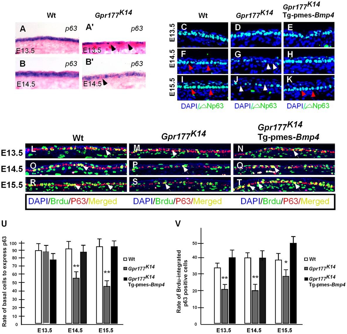 Transgenically expressed <i>Bmp4</i> in <i>Gpr177<sup>K14</sup></i> mutants rescued the defective p63 expression.