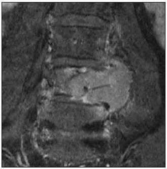 MR, T1 vážený obraz, koronální rovina. Paragangliom extradurální a paravertebrální na etáži L3–L5 vlevo, hyperintenzní tumor po podání kontrastu.