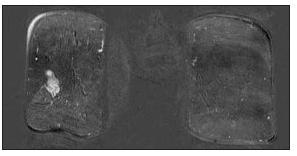 Magnetická rezonance Fig. 4. Magnetic resonance imaging
