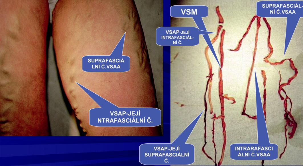 Extrakce celého safémového komplexu VSAA probíhá mimo HS. Z VSM odstupuje v HS pouze VSAP.  Klinicky manifestní suprafasciální část přidatných safén VSAA a VSAP u téhož pacienta. Vlastní VSM nemá na stehně klinickou manifastaci, její průběh je intrafasciální.