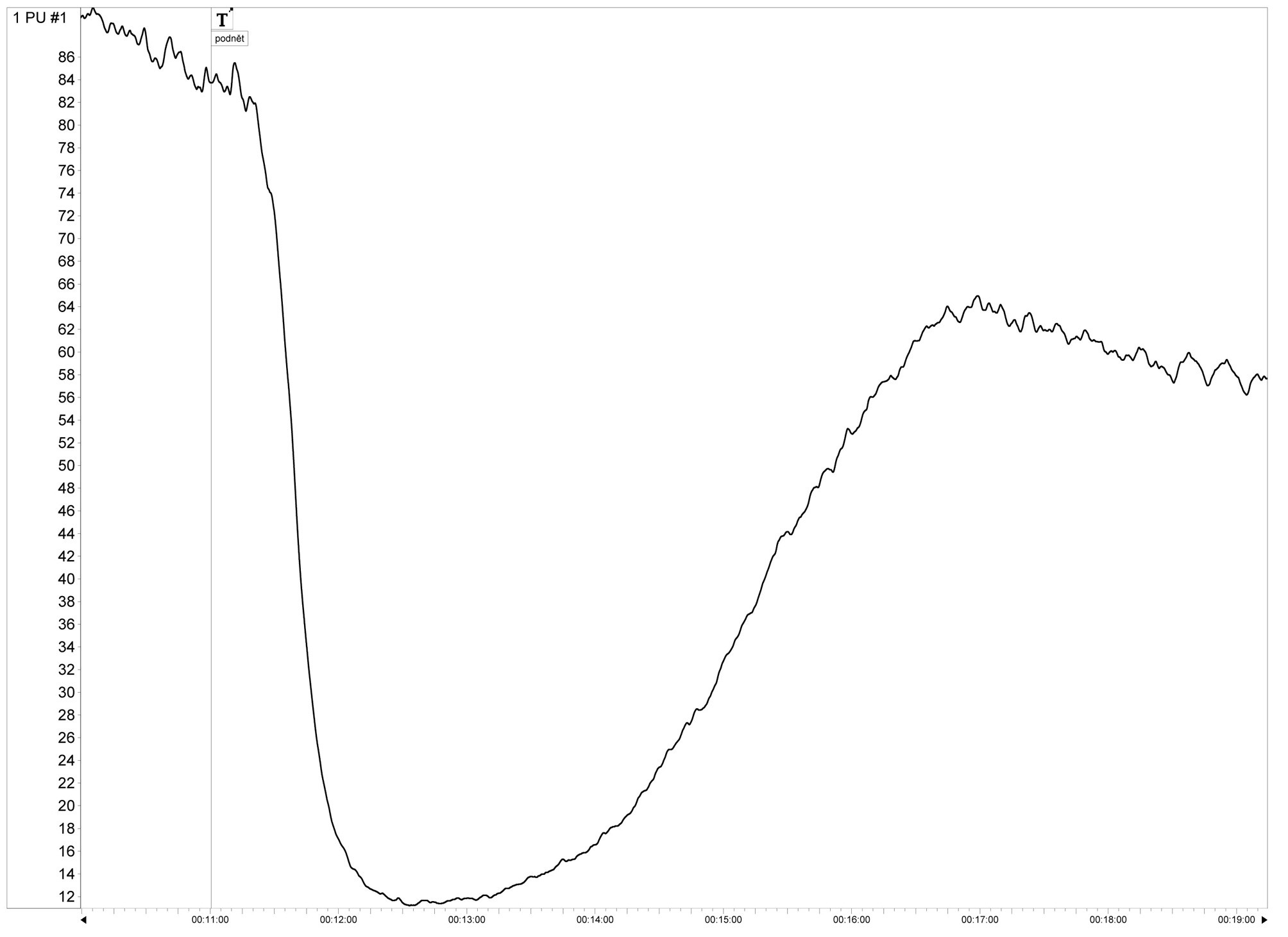 """Fig. 2. Example of the signal obtained by the laser-Doppler flowmeter. The marker """"T'"""" represents """"t=0"""" (time when the pedicle is bathed in blood). The graph shows the rapid decline signal amplitude (perfusion) caused by vasospasm"""