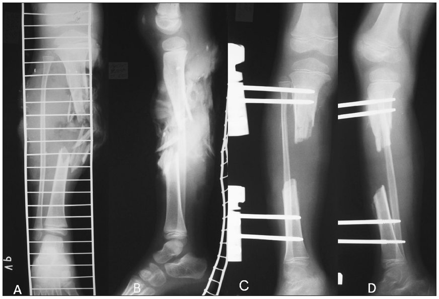 a. Tibial shaft fracture – PA view