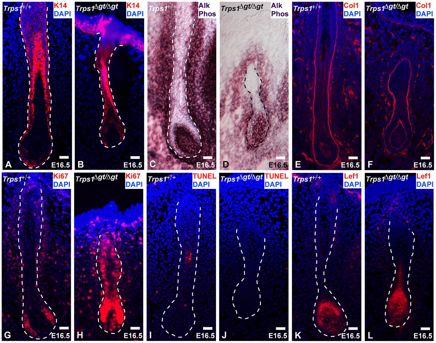 <i>Trps1<sup>Δgt/Δgt</sup></i> vibrissae follicles exhibit increased levels of proliferation.