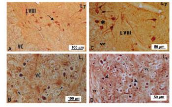 Obrázok, znázorňujúci nNOS-imunoreaktivitu vo ventrálnej časti dolnej lumbálnej miechy u kontroly (A,B) a 5 dní po navodení 4-násobnej konstrikcie cauda equina (C,D).