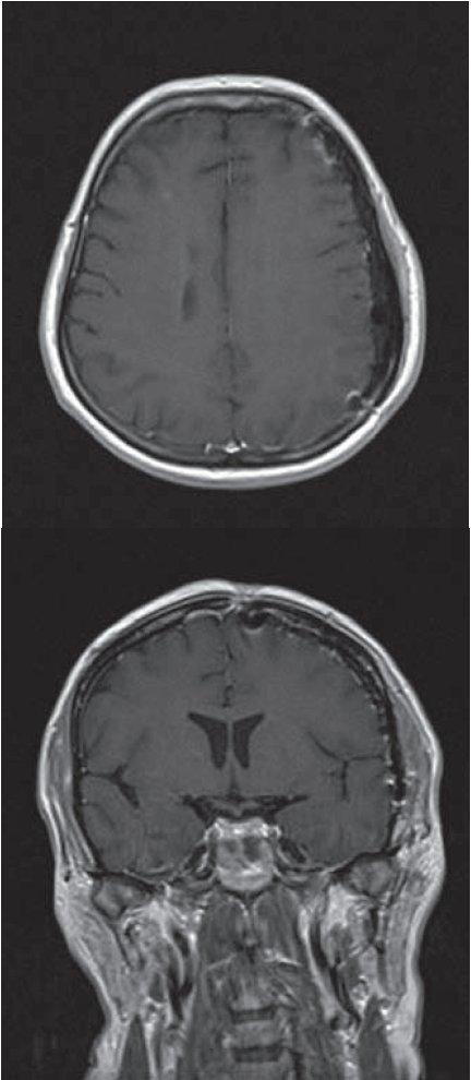 Pooperační MR T1W1 vážené obrazy s podáním kontrastní látky (gadolinia).