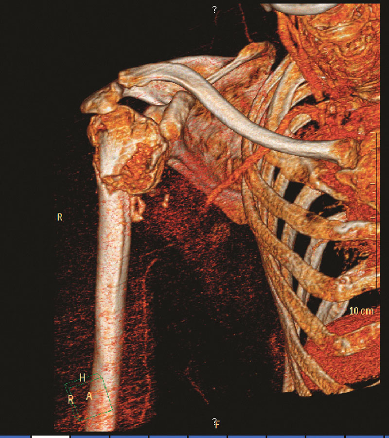 3D CT angiografie s patrnou okluzí 3. segmentu arteria axillaris Fig. 1. 3D CT angiography depicting occlusion of the 3rd segment of the arteria axillaris