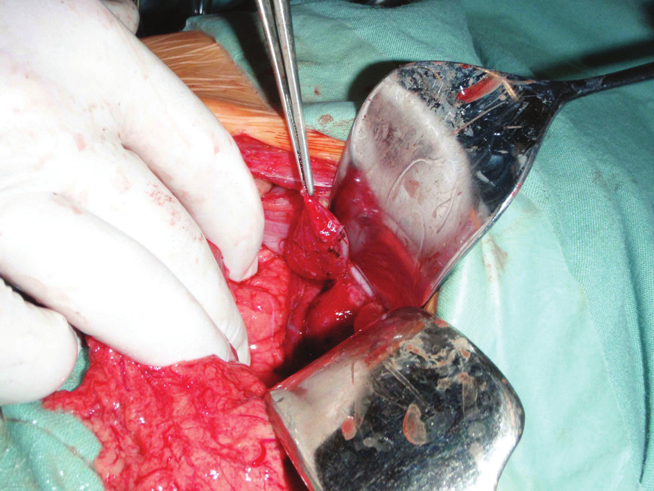 Operace, exstirpace cysty Fig. 4: Surgery, exstirpation of the cyst