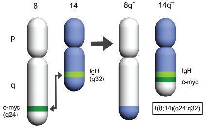Schéma charakteristické chromozomální translokace u Burkittova lymfomu.