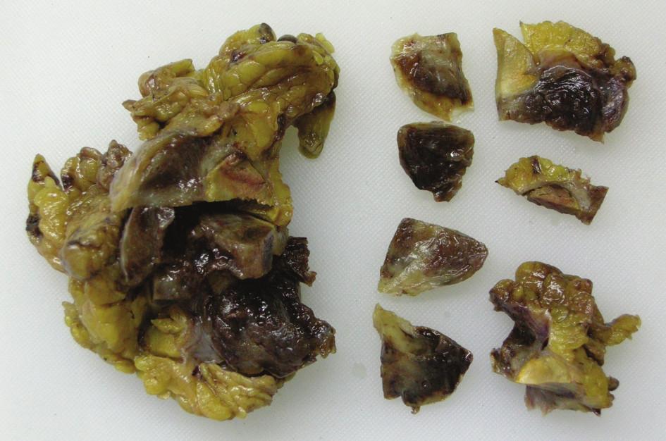 Makroskopický obraz resekátu prokrájený patologem Fig. 2: Macroscopic image of EGIST resecate