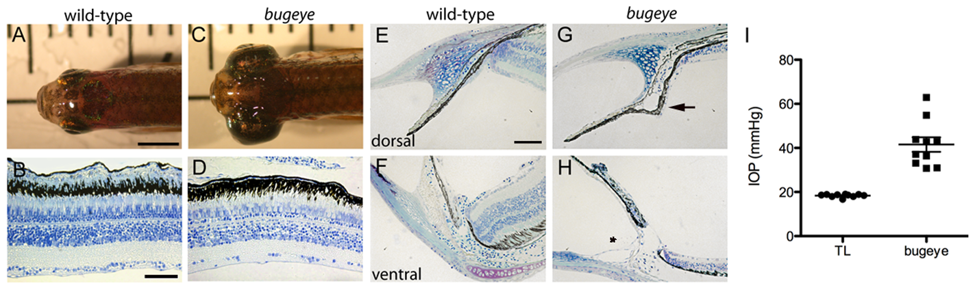 Adult <i>bugeye</i> zebrafish have enlarged eye globes, thinned retinas, and elevated intraocular pressure without iridocorneal angle obstruction or malformation.