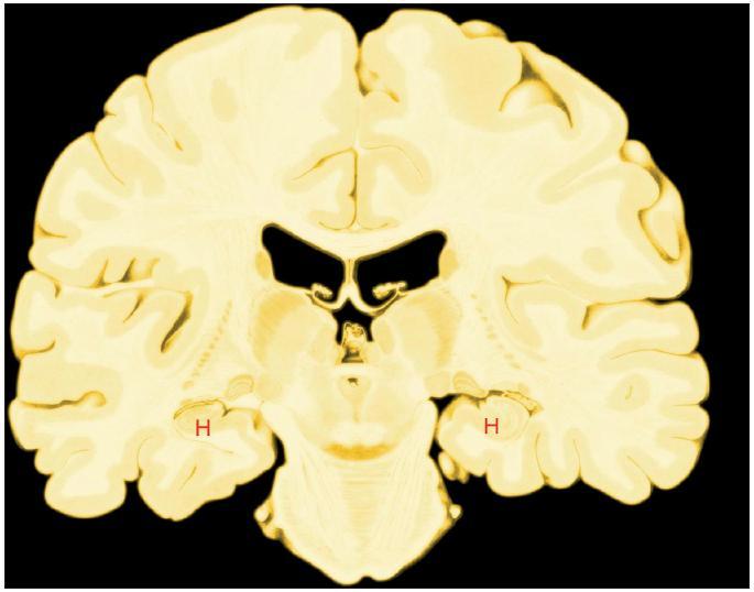 Hipokampální formace (H) v řezu čelní rovinou mozku. Hipokampální formaci tvoří řada funkčně i stavebně odlišných součástí. Je klíčově důležitá pro ukládání informací do dlouhodobé paměti i pro jejich vyvolávání z paměti. Její činnost by se dala přirovnat k magnetofonové smyčce: sbírá zpracované smyslové informace ze smyslových korových oblastí, například zrakové a sluchové. Pak je zpracuje a po zpracování vrací tam, odkud přišly. Oboustranné poškození hipokampální formace způsobí amnézii, poruchu vědomé paměti. Pacienti si pamatují informace do poškození, nové si zapamatují jen několik desítek sekund díky činnosti pracovní paměti, která je vázána zejména na činnost čelních laloků mozku. Pak je zapomenou. Jestliže se s týmiž informacemi setkají znovu, jsou pro ně zcela nové.