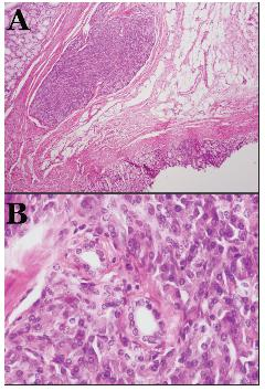 Histologický obraz heterotopického pankreasu (A – ložisko heterotopického pankreasu v submukóze (hematoxilin-eozín, 40x); B – malé pankreatické vývody (hematoxilin-eozín, 400x) Obr. 3. Histological picture of heterotopic pancreas (A – lesion of heterotopic pancreasu in submucous (hematoxilin-eosin, 40x); B – little pancreatic dusts (hematoxilin-eosin, 400x)