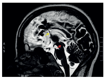 Na magnetické rezonanci v T2 vážené sekvenci v sagitálním řezu je zobrazena pacientka s obstrukčním hydrocefalem (místo obstrukce – Sylviův mokovod – označeno červenou šipkou) s implantovaným shuntem (katétr v komorovém systému označen žlutou šipkou)