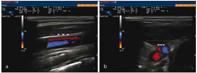 Reflux (ˇˇˇ) ve v. jugularis interna v pozici vleže v podélném (7a) a příčném (7b) řezu.