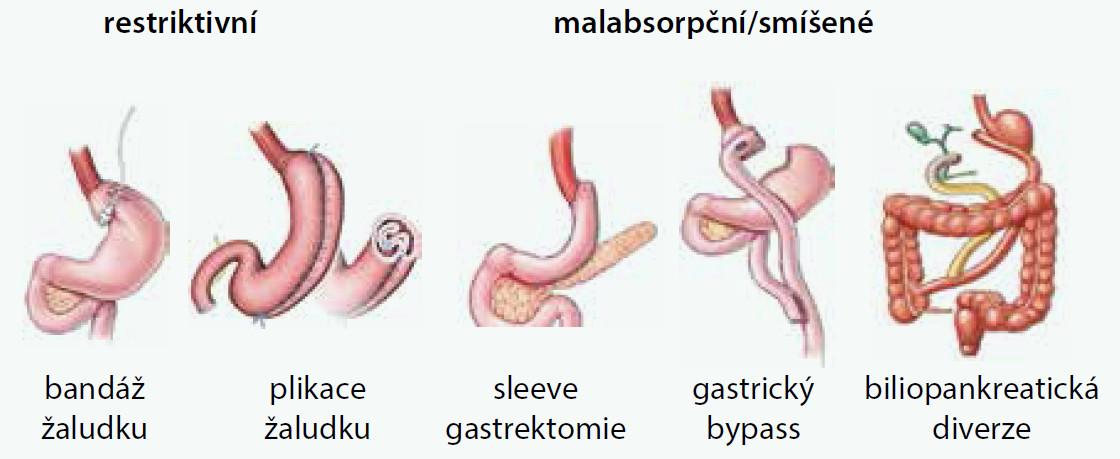 Obr. Typy bariatrických operací