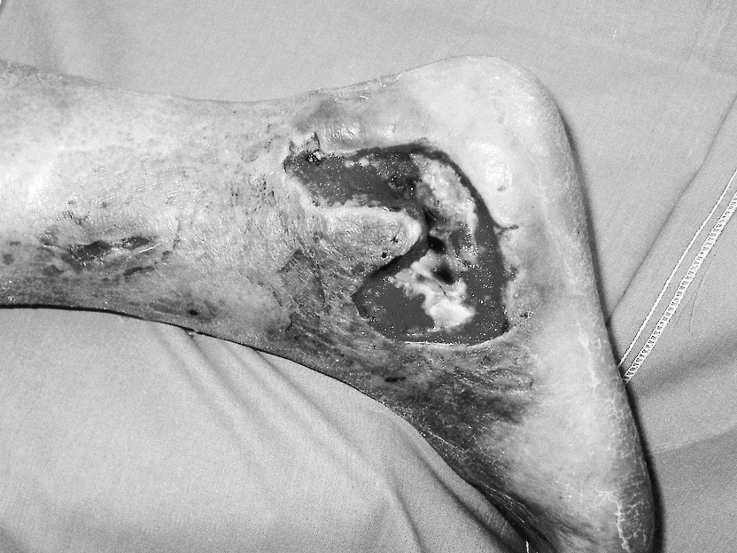 Pacient s defektem měkkých tkání po laterálním přístupu na zlomeninu patní kosti Pic. 1. The patient with a soft tissue defect after a lateral approach procedure for his calcaneal fracure