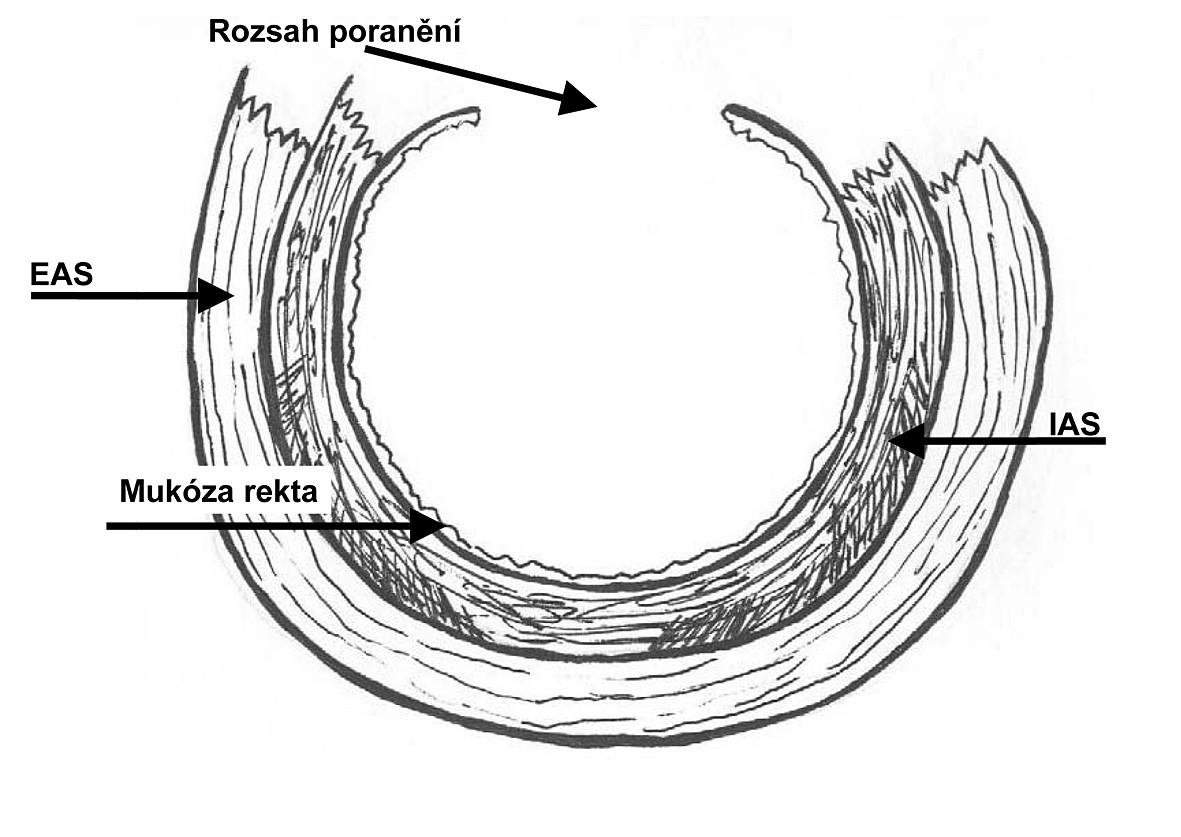 Ruptura perinea 4. stupně podle RCOG